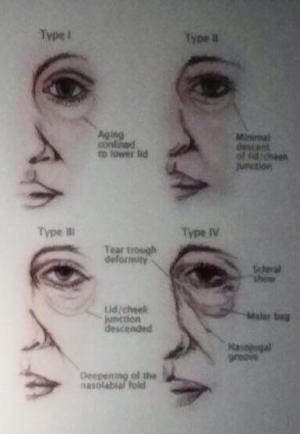 Jeunesse Global Hong Koong Luminesce Eye Firming Gel 賦活肌因晶萃眼膠9